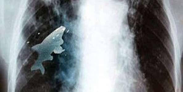 Peste viu scos din plamanul unui copil de 12 ani - Refu.ro
