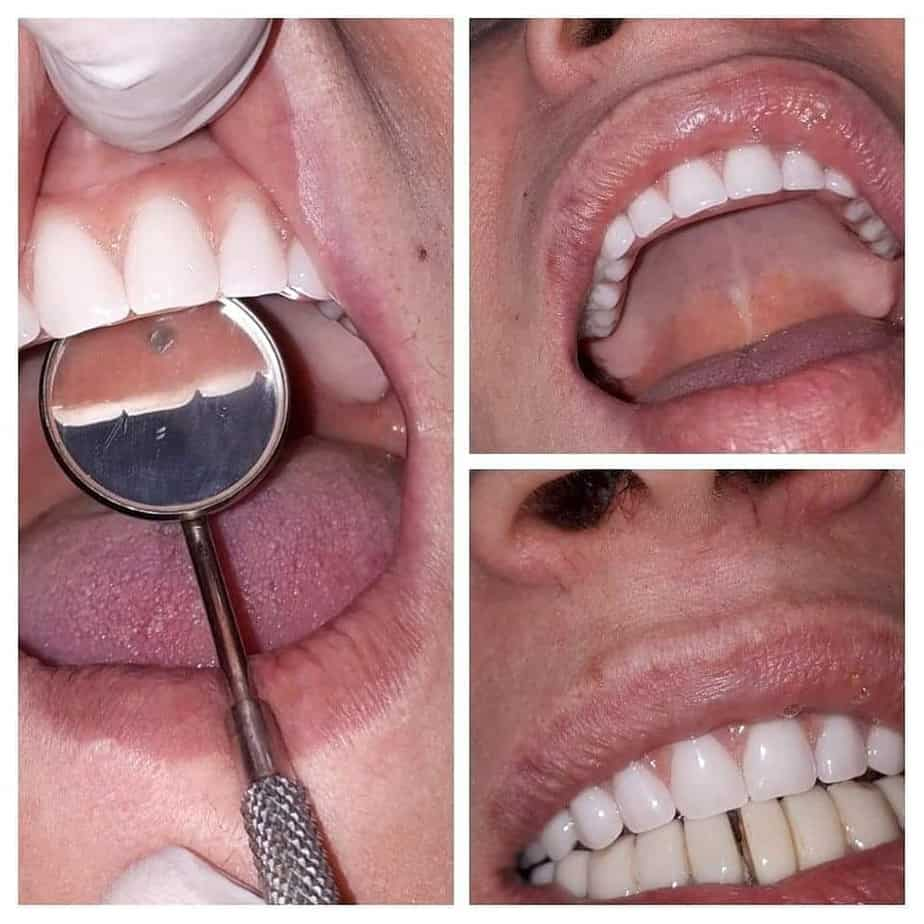 Tratamente dentare doar la AmonraDent - Refu.ro